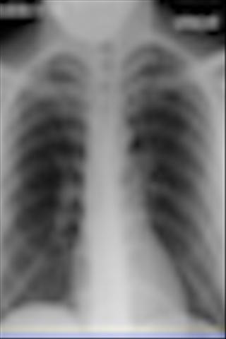 Pulmonary Board Questions