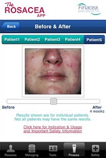 The Rosacea App - screenshot thumbnail