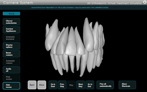 Carriere Ortho 3D screenshot for Android