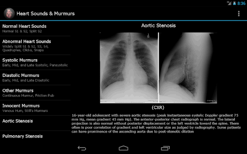 Heart Sounds & Murmurs - screenshot thumbnail