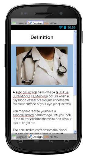 玩免費醫療APP|下載Subconjunctival Hemorrhage app不用錢|硬是要APP