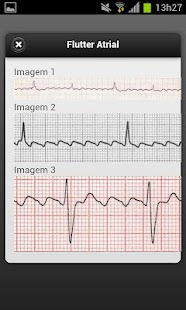 ECG - screenshot thumbnail