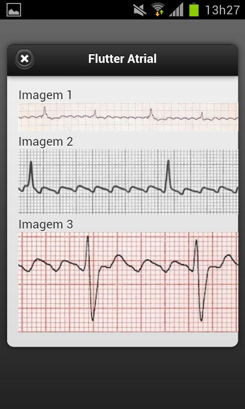 ECG- screenshot