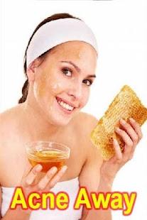 Acne Away Home Remedies Help screenshot