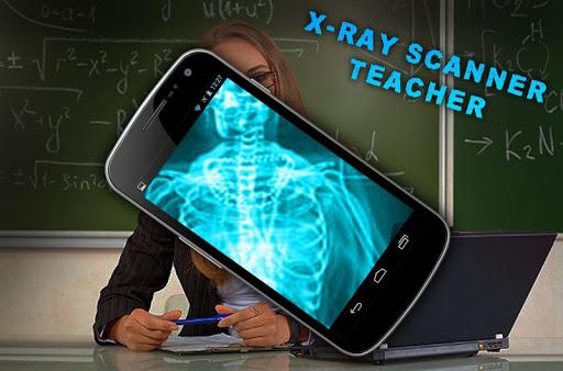 X射线扫描仪老师