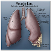 What Is Mesothelioma?
