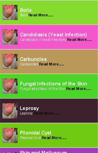 Skin Infections Guides