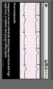 Electrocardiogram ECG Types - screenshot thumbnail