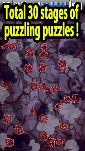 EbolaVirus Outbreak