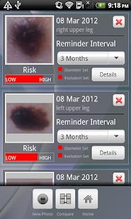 Doctor Mole - Skin cancer app - screenshot thumbnail