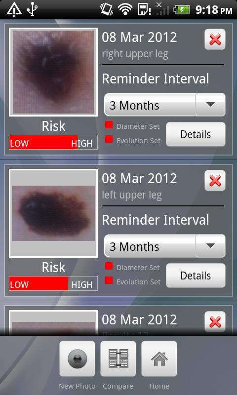 Doctor Mole - Skin cancer app - screenshot