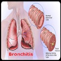 Bronchitis Guide! logo