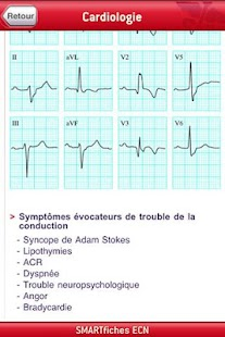 SMARTfiches Cardiologie Free- screenshot thumbnail