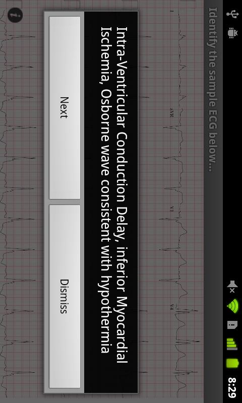 ECG Guide by QxMD - screenshot